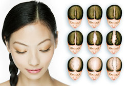 Female Pattern Of Baldness Treatment Services
