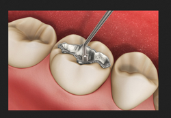 Filling And Restorations