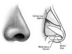 Septorhinoplasty Surgeries