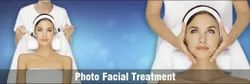 Photo Facial Treatment Service