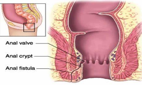 anal fistula of Healing