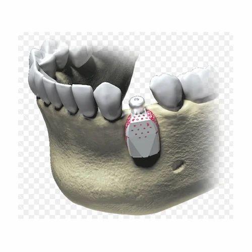 MegaGen I-Gen Mesh Dental Implants, Chesa Dental Care Services