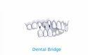 Dental Bridge Treatment Service