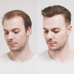 Unisex Non Surgical Hair System, For Hair Replacement