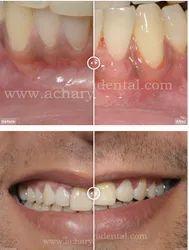 Gum Surgery Services