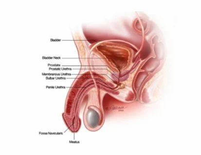 Management Of Urethral Structure Disease in Ambur, Ambur