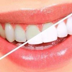 Teeth Whitening Treatment Service