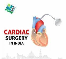 Best Cardiac Surgery in India