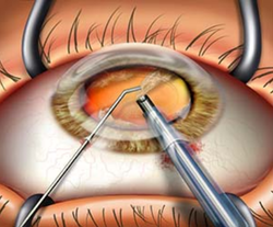 Cataract Surgery Treatments Services