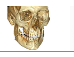 Jaw Fractures