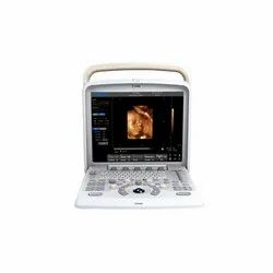 Chison Q5 Ultrasound Machine