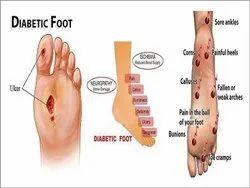 Diabetic Foot Care Treatment