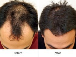 Hair Re Growth With PRP