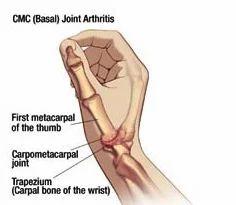 basal Joint Arthritis Service