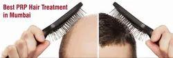 PRP Hair Treatment Service