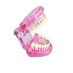 Dental Orthodontic Model With Bracket