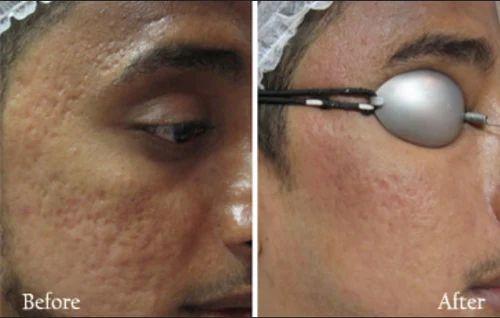 Laser Scar Reduction in Vazhuthacadu, Thiruvananthapuram