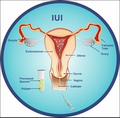 Intrauterine Insemination IUI Treatments Services in Indira