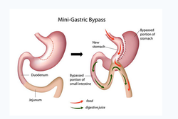 Mini Gastric Bypass Surgery Services
