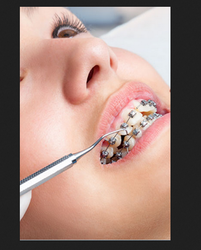 Orthodontic Dentistry Treatment Services