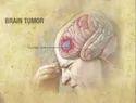 Brain Tumours Treatment Services
