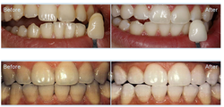 Teeth Whitening or Bleaching