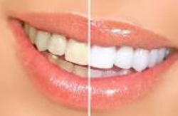 Scaling And Polishing Dental Treatment Services
