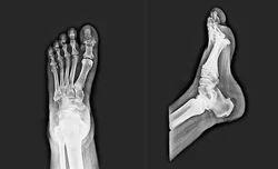 Digital X-Ray Scan Service