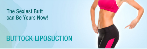 Buttock Liposuction Surgery Service