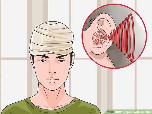 Tinnitus Treatment Service, चिकित्सा उपचार
