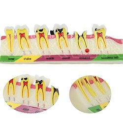 Dental Caries Developing Tooth Typodont Teeth Model