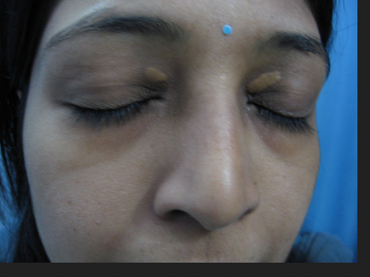 Xanthelasma Treatment Service in Hinoo, Ranchi | ID: 18925354088