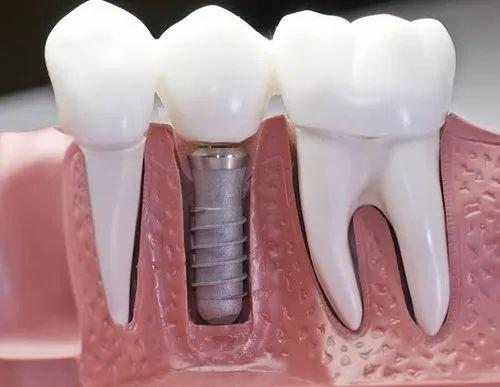 "Image result for Titanium Dental Implants"""