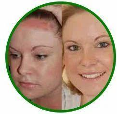 Skin Treatment Solution in Chennai