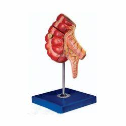 Appendix and Caecum