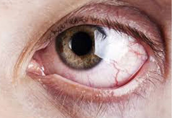 Dry Eye Management Care Services
