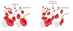 Beta Thalassemia Screening Services