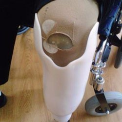 Passive Prosthetic Long Stump RCR Transtibial Socket, Full Leg