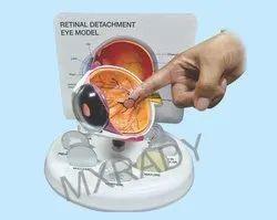 Retinal Detachment Eye Model