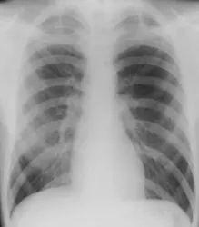 Pneumothorax Background Treatment