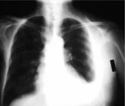 Chest Radiography Treatment