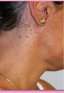 Skin Tag Removal In Chennai Nochikuppam By Dr Annie S Skin Care