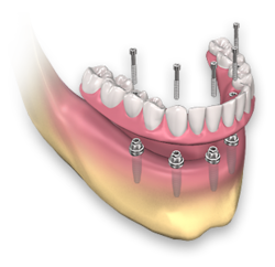 Dental Implants Prosthesis