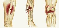 Fracture Treatment Services