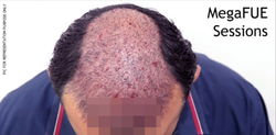 Hair Transplants with Fue and Mega-Fue Services