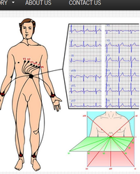 Electrocardiography Treatment