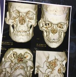 Facial Bone Fractures Multiple And Communited