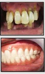 Mouth Rehabilitation Service