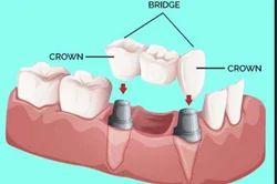 Crown And Bridge Treatment Service