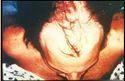 Hair Restoration Treatment Service